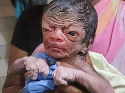 Baby With Benjamin button Disease