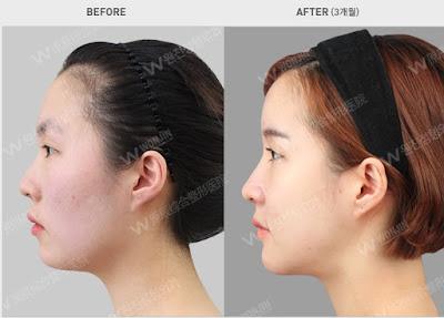 sebelum dan sesudah operasi kontur wajah Korea - pembesaran dagu