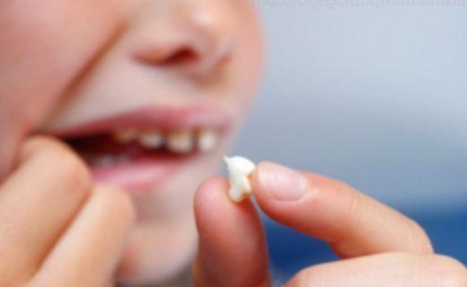 Apa Makna Arti Mimpi Gigi Copot? Ini Penjelasannya Menurut Psikolog.