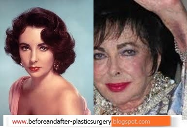 Elizabeth Taylor Before And After Before And After Plastic Surgery Celebrity 2011 Cosmetic
