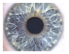 The Human Iris ( Hussein H. Fakhry and Benedict B. Cardozo, 2006) Figure 1: The Human Iris