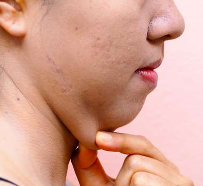 #Twofold Chin, Top Home Remedies To Get Rid Of It#Health