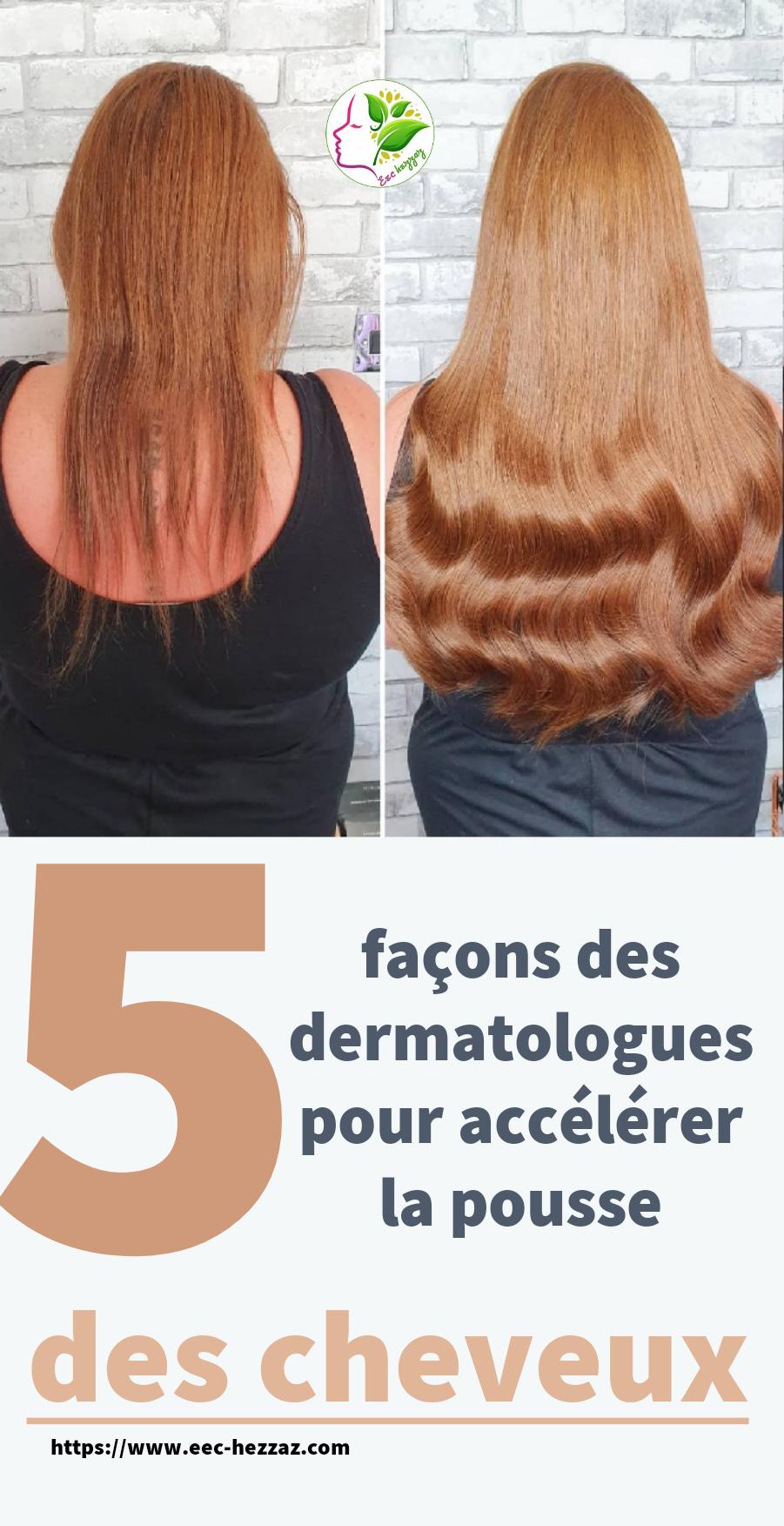5 façons des dermatologues pour accélérer la pousse des cheveux