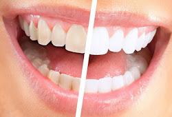 Cara Menghilangkan Gigi Kuning Secara Alami Dan Permanen Ketemu