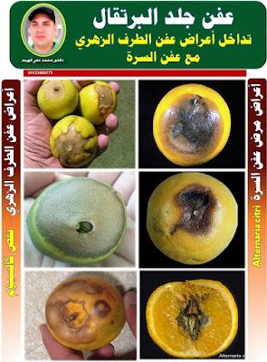 عفن جلد ثمار الموالح(البرتقال أبو سرة – الليمون)