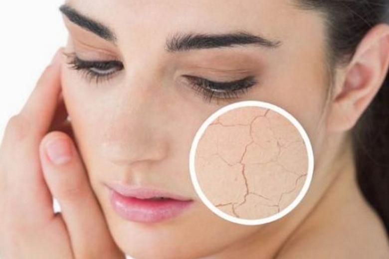 10 Dampak Negatif Tidur Tidak Nyenyak Bagi Kecantikan