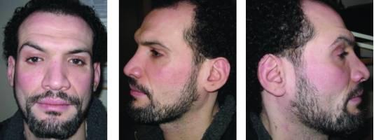 El paciente después de la despigmentación con monobenzona