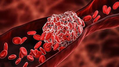 Deep Vein Thrombosis or DVT Involving Inferior Vena Cava Tied to Higher Mortality