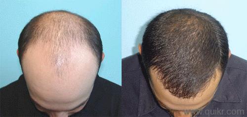 Tips Melebatkan Rambut secara Alami