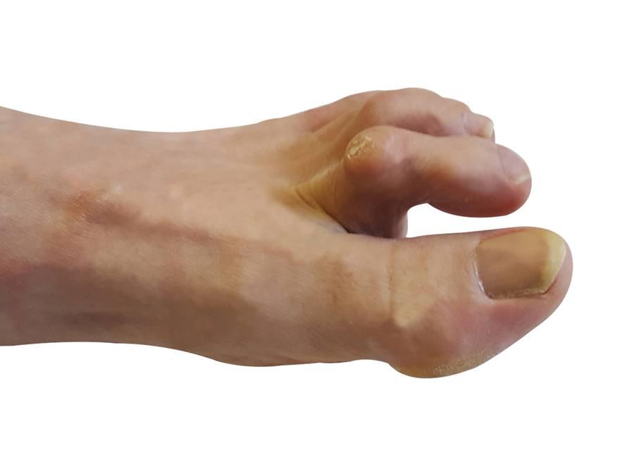 ¿Dedos garra?