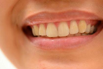 Penyebab Gigi Kuning Selain Jarang Menggosok Gigi
