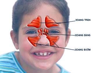 Thuốc chữa viêm xoang bướm