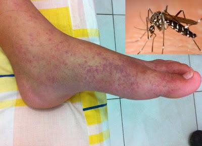 Demam Chikungunya