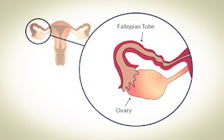 Ovary in reproductive system
