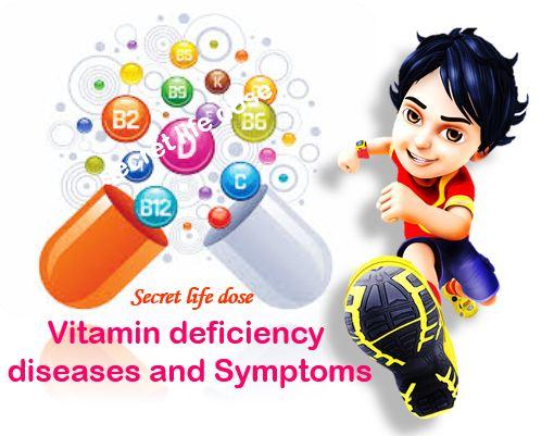 Vitamin deficiency diseases and Symptoms | secret life dose