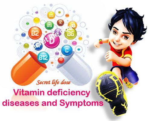 Vitamin deficiency diseases, vitamin A, B , C, D, K, H , Vitamin deficiency symptoms,