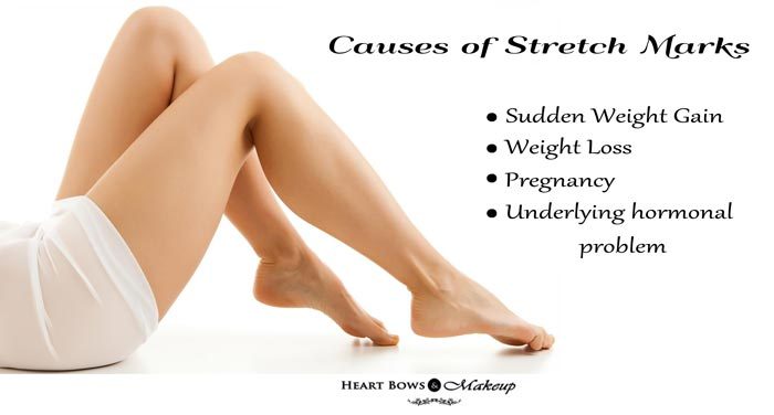 Tips atasi STRETCH MARKS ketika hamil