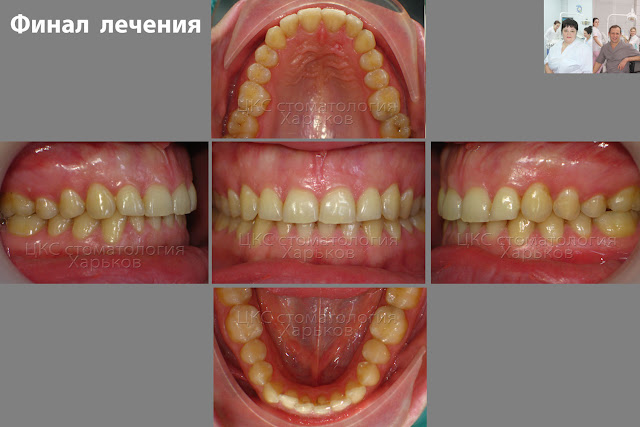 Зубы пациента после ортодонтического лечения