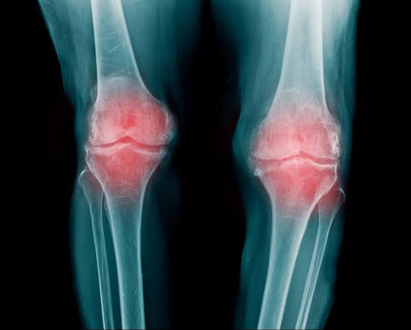 Osteoarthritis (OA) | Symptoms | Causes | Diagnosis | Treatment : MDLifeIndia