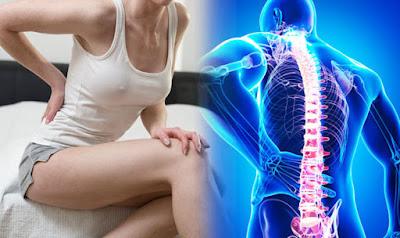 sakitpinggang-lumbargo-nyeripinggang-nyeri punggung