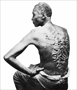 Scarred Back of an Escaped Mississippi Slave