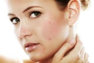 pemutih wajah, cara menghilangkan jerawat, penghilang jerawat, cream pemutih wajah, royalty cosmetic