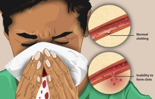 Intervensi Asuhan Keperawatan Pada Hemofilia