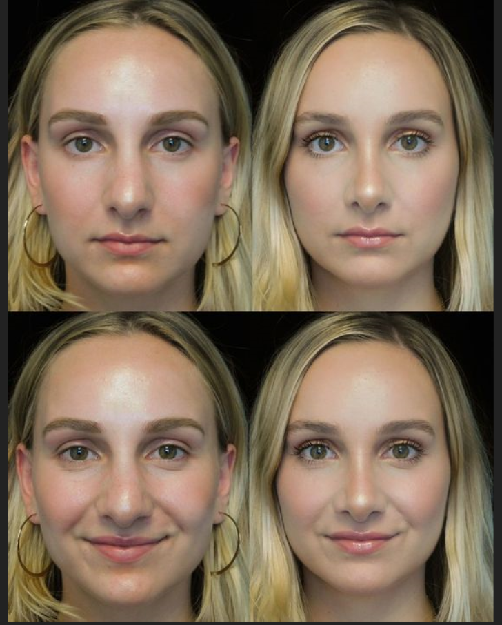 Liquid Or Surgical Rhinoplasty