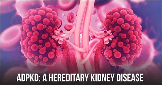 Autosomal dominant polycystic kidney disease