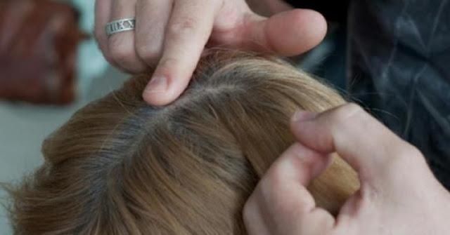 Naša kosa pokazuje koliko ćemo dugo živjeti
