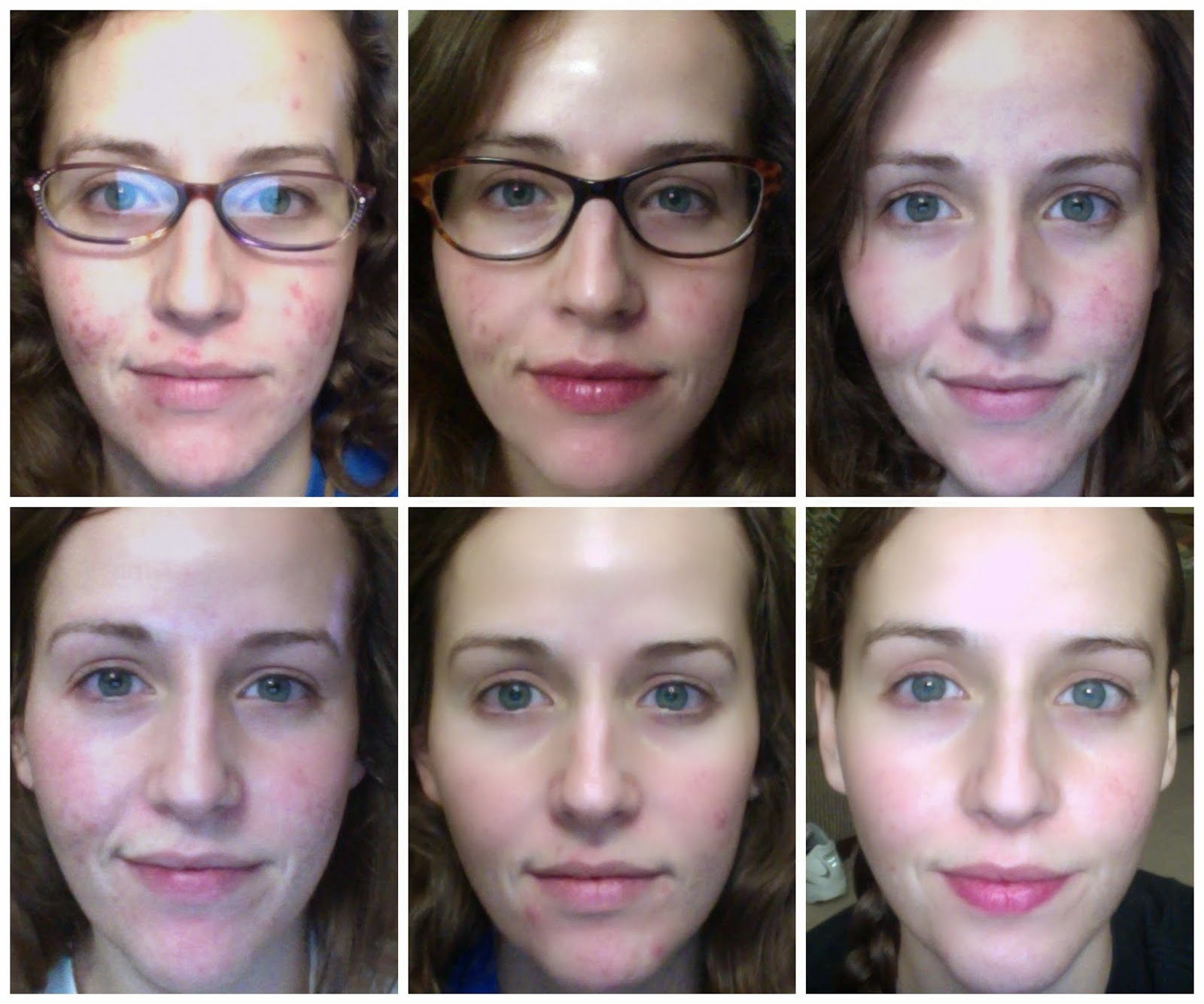Aldactone For Acne Weight Loss