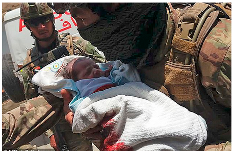 See The Baby Which Survived After Being Shot Twice By Terrorists Inside the Hospital