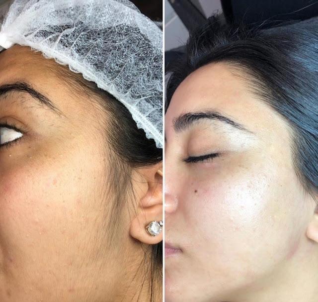 Une pâte d'épilation pour se débarrasser des poils indésirables du visage définitivement