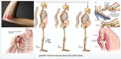Obat Kanker Tulang Sudah Terbukti Ampuh