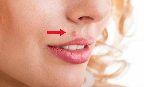 Resultado de imagen de verrugas