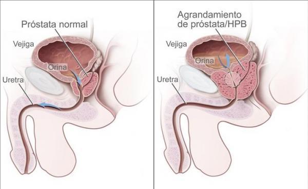 artículos de próstata caseros