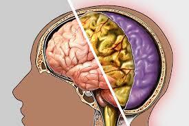تعرف على اسباب مرض السحايا و أعراض السحايا -  العلاج من التهاب السحايا