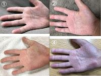 子供の手汗治療/イオントフォレーシス「サーリオ」レビュー