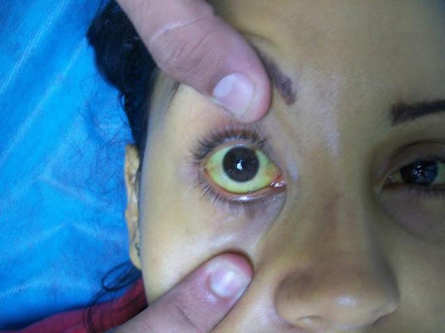 Jaundice Disease: Causes, Symptoms and Ayurvedic Treatment