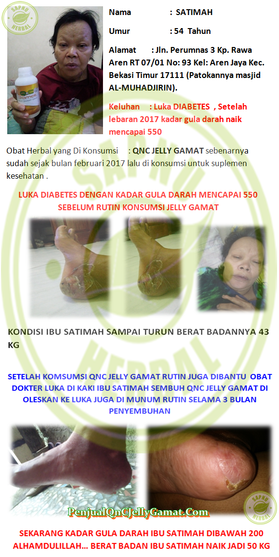 Cara Mengobati Luka Diabetes Basah Secara Alami Terbukti Mujarab ~ Testimoni QNC JELLY GAMAT