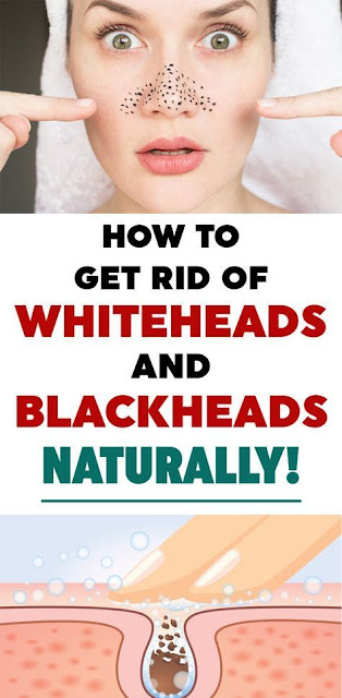 wellnessdayss.blogspot.com How To Get Rid Of Blackheads Oily Skin More More 1-2 minutes  Oily skin and blackheads often go hand in hand and it's definitely not a union you want on your face. Do you suffer from both? We have recommendations for how you can reduce the appearance of blackheads, oily skin and enlarged pores are a thing of the past. Read on.  What causes oily skin and blackheads?  Oily skin is largely hereditary, but can also be caused by hormonal imbalances such as puberty or pregnancy.  According to the American Association of Dermatology, blackheads are formed through oil, dead skin cells and bacteria that block pores and cause small bumps called blackheads. If a blocked pore stays open, it can look kind of black and is called a blackhead.  While you may have been born with acne- and blemish-prone skin that doesn't mean it's not manageable/without help. With the right routine you can curb oiliness and the blemishes that go with it.