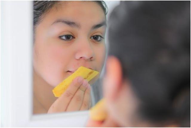 5 Manfaat Kulit Pisang Bagi Kesehatan & Kecantikan + Cara Penggunaan