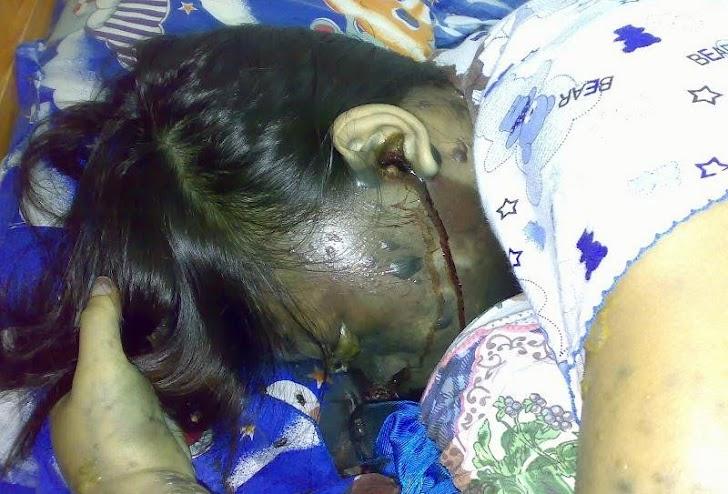 Inilah 9 Bahaya Menggunakan Headset Saat Tidur