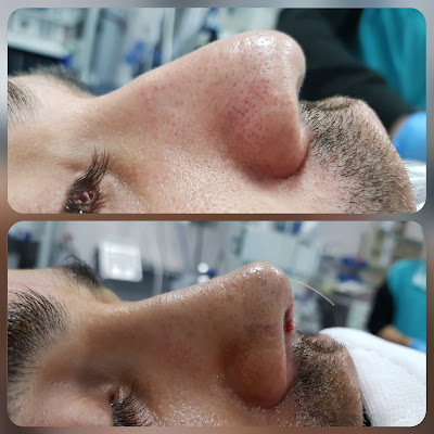 Rhinoplasty Without Breaking Bone