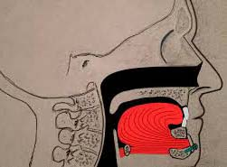 The breathing space in the throat can be blocked by the falling back of your tongue while you sleep. In this surgical procedure, the attachment of the tongue is moved forward, which opens up the breathing space at the back of your tongue.
