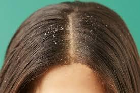Dapatkah Ketombe Menyebabkan Rambut Rontok?