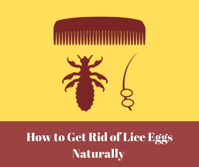How to Get Rid of Lice Eggs Naturally