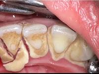 """<Img src =""""sarro-fragmentado.jpg"""" width = """"400"""" height """"300"""" border = """"0"""" alt = """"Sarro dental agrietado en dientes inferiores."""">"""