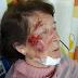 SÁENZ PEÑA: ABUELA SUFRIÓ BRUTAL ROBO EN UN HIPERMERCADO
