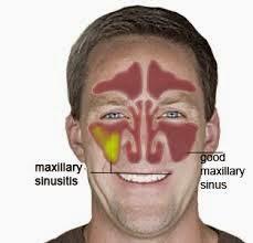 Sinus Infection BLOG